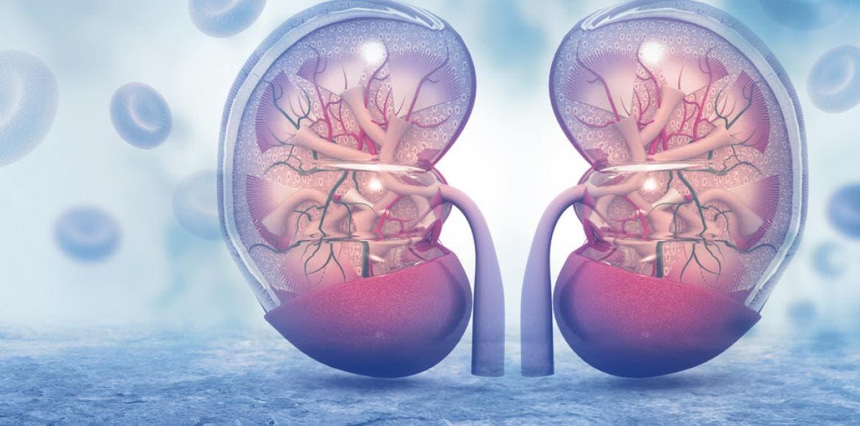 """Resultado de la búsqueda de imágenes para """"insuficiencia renal"""""""